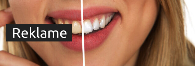 Gode grunde til at pleje dine tænder